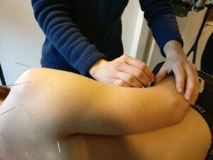 akupunktur udført på mand