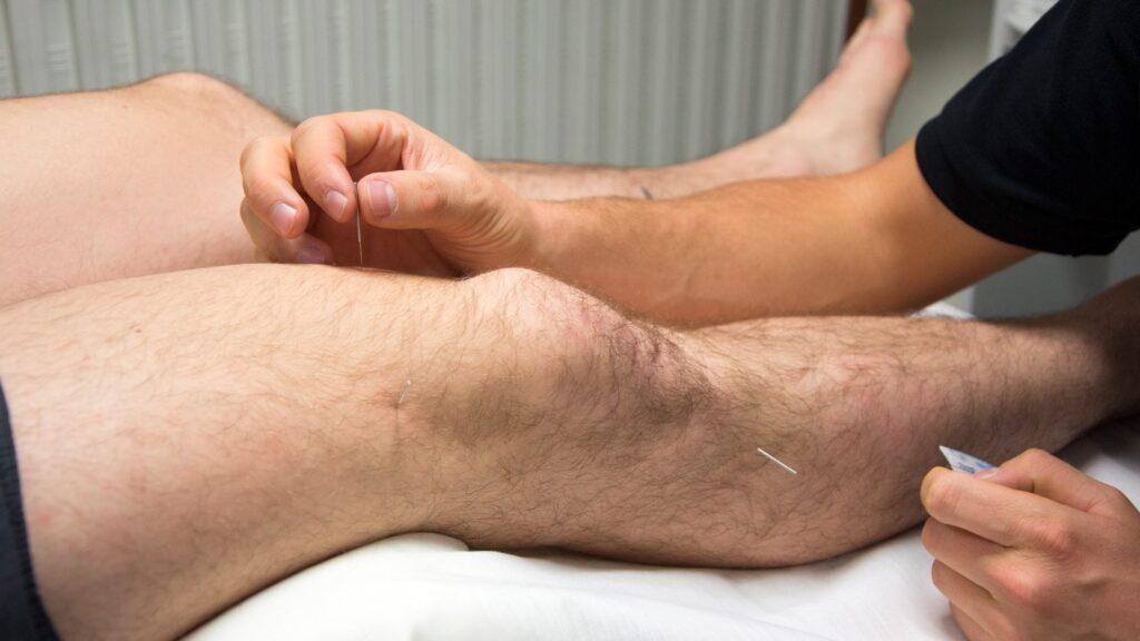 akupunktur i mandeben