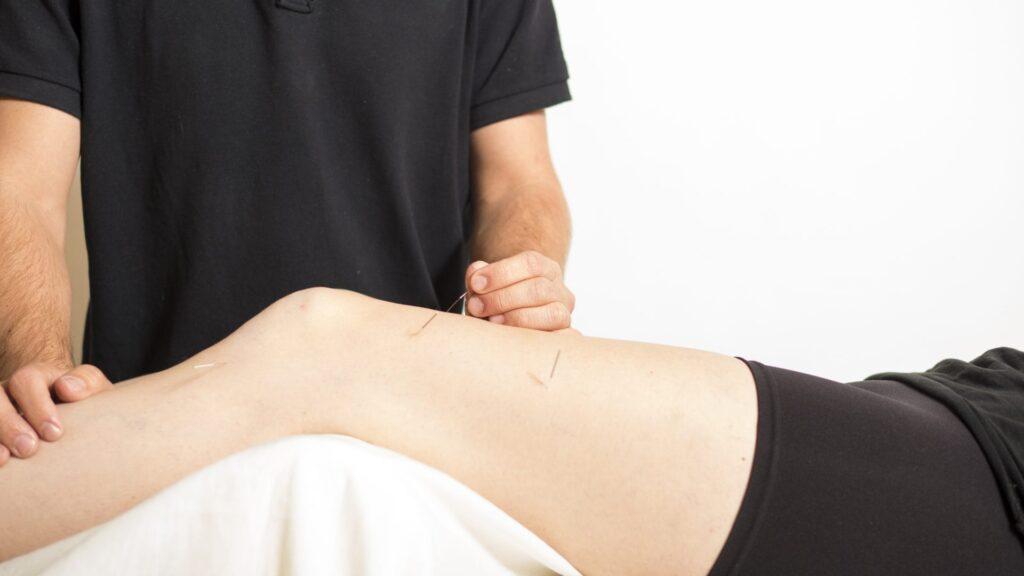 Akupunktur i knæ