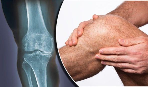 Slidgigt / Artrose i knæet (Knæskade)