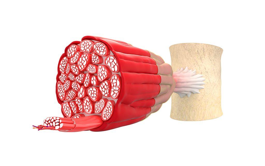 Muskelfiber, fibersprængning