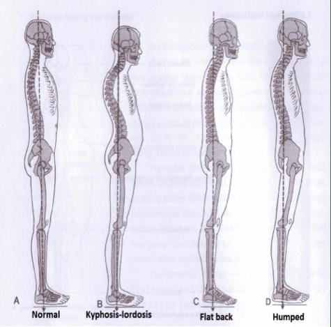 forskellige kropsholdninger