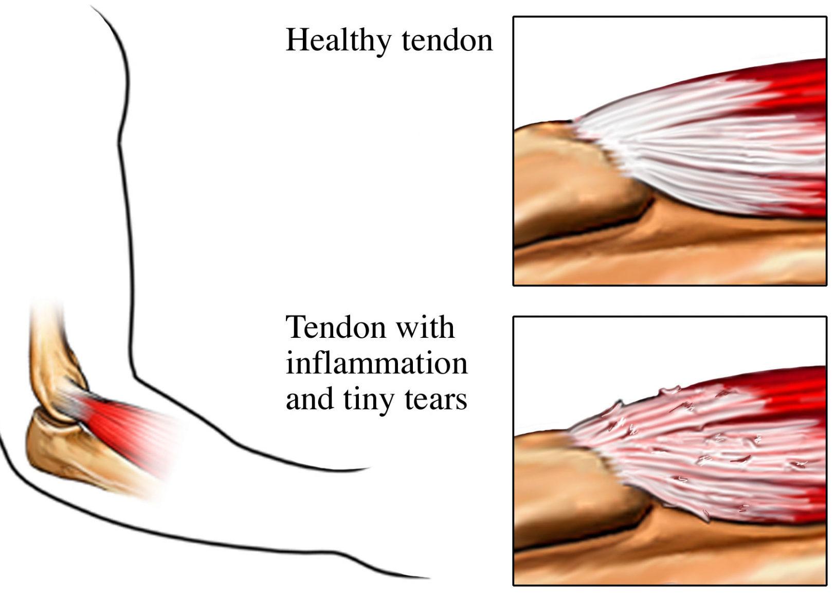 Smerter i underarmen - Sundhed med Mening - Aarhus C